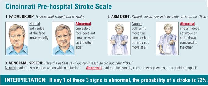 stroke3