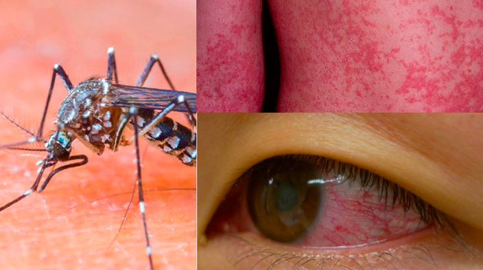 5-things-you-need-to-know-about-the-newly-worldwide-spread-virus-called-Zika